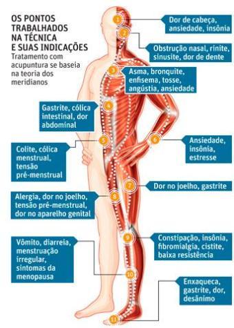 infografico_acupuntura
