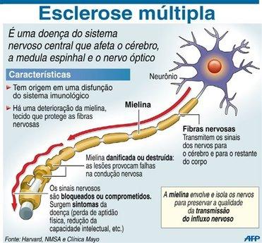 Esclerose2